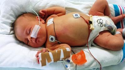 Bebé ingresado en hospital